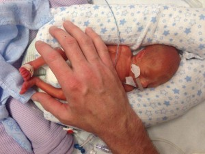 Jett's dad places his hand on his son at 10 days old.
