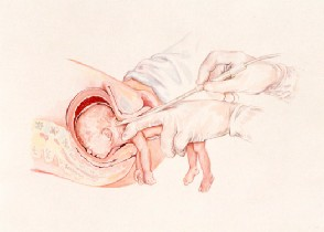 PBA Partial Birth Abortion .image