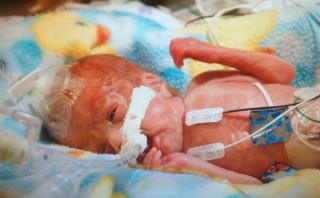 Baby born at 23 weeks leaves hospital after 345 days