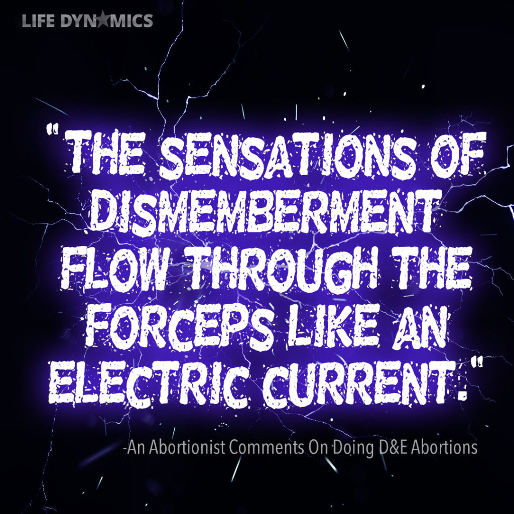 """""""The sensations of dismemberment flow through the forceps like an electric current."""" - An abortionist comments on doing D&E abortions."""